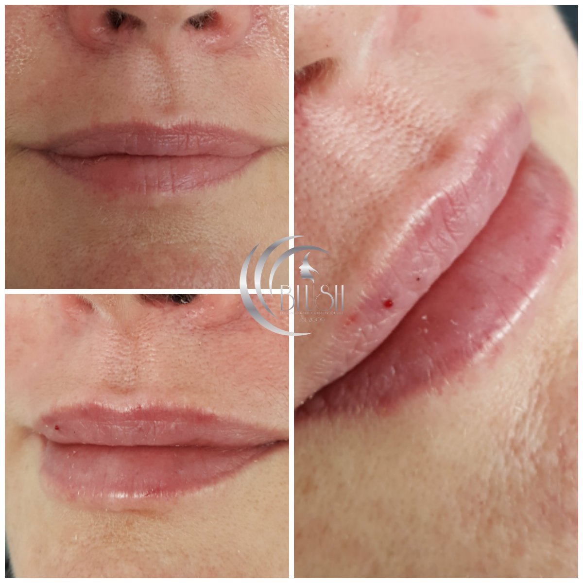 lip fillers Bournemouth