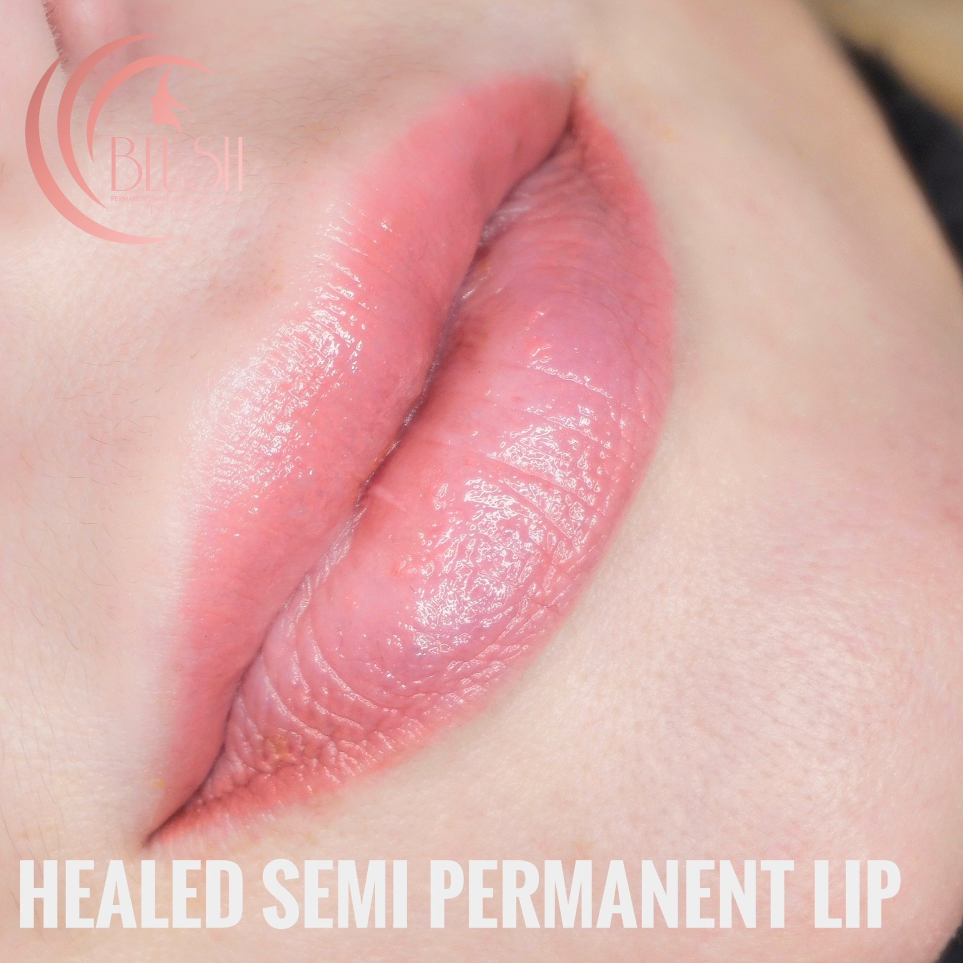 permanent lips Bournemouth