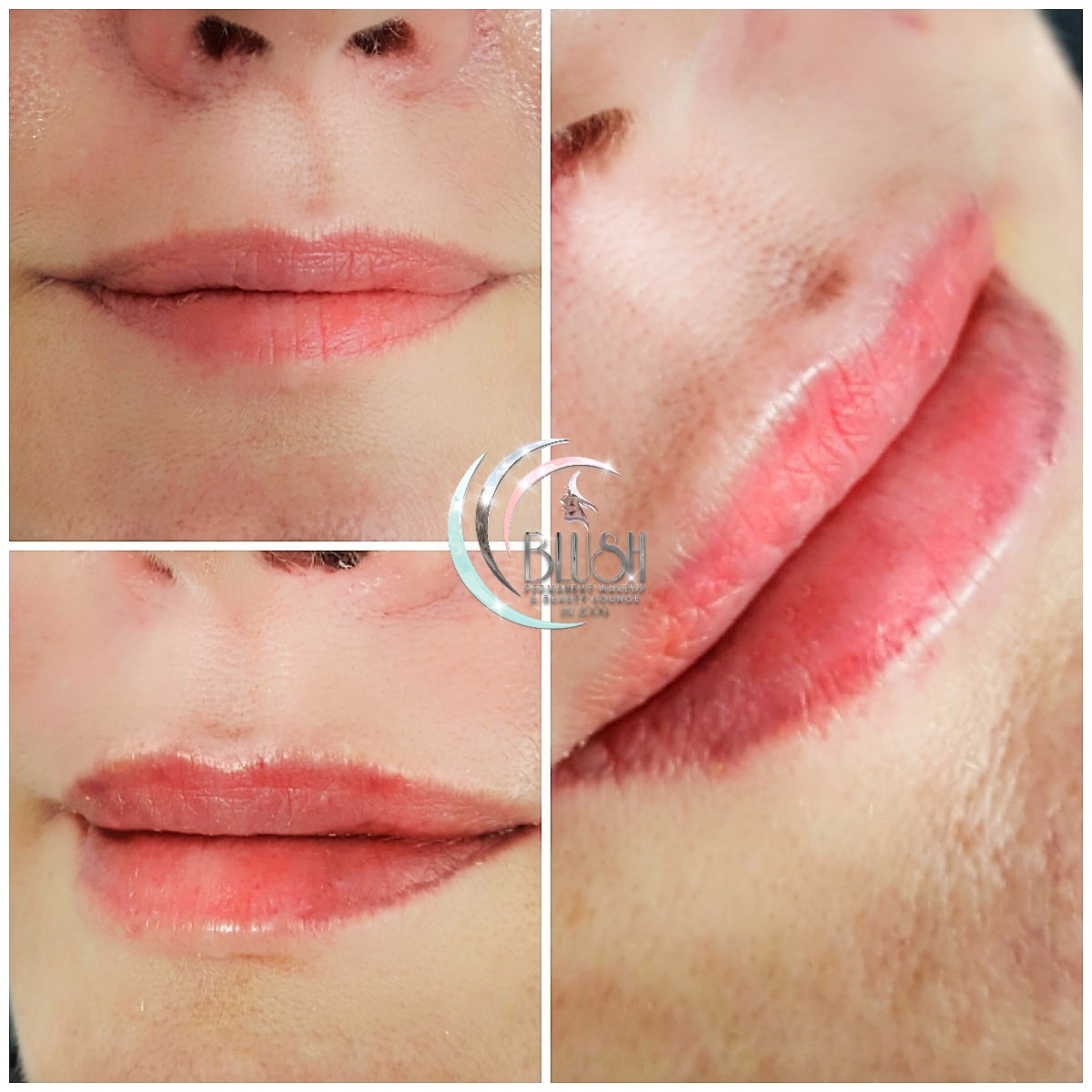 dermal and lip fillers bournemouth