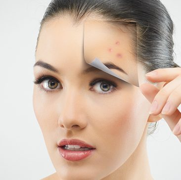 aha skin peel Bournemouth