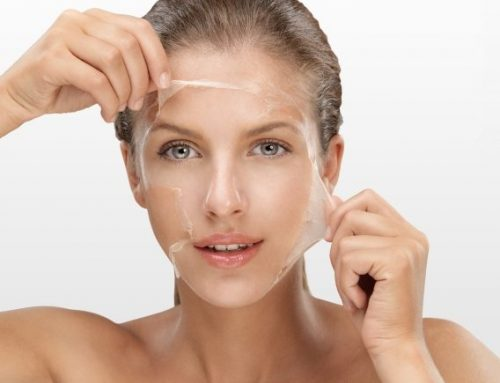 Why winter is the best time for chemical skin peels?