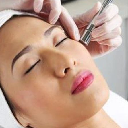 diamong microdermabrasion bournemouth