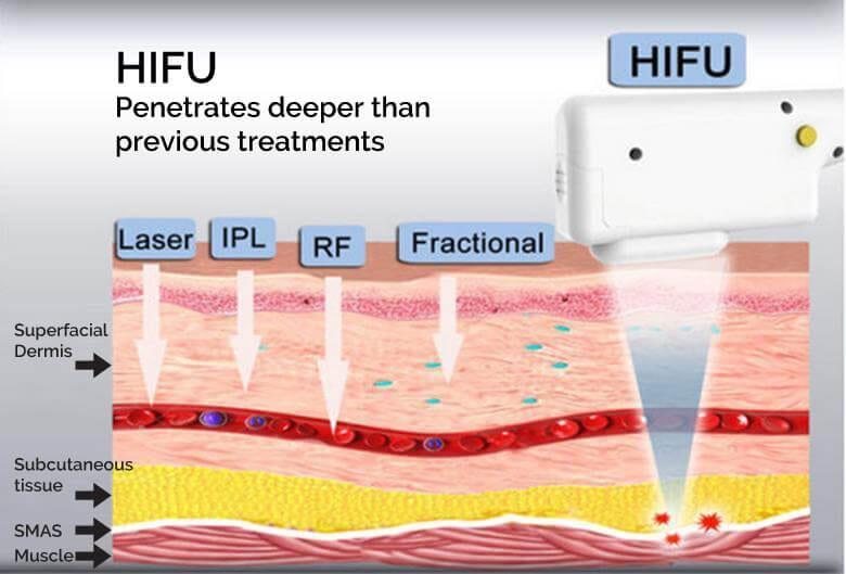 hifu face slimming bournemouth